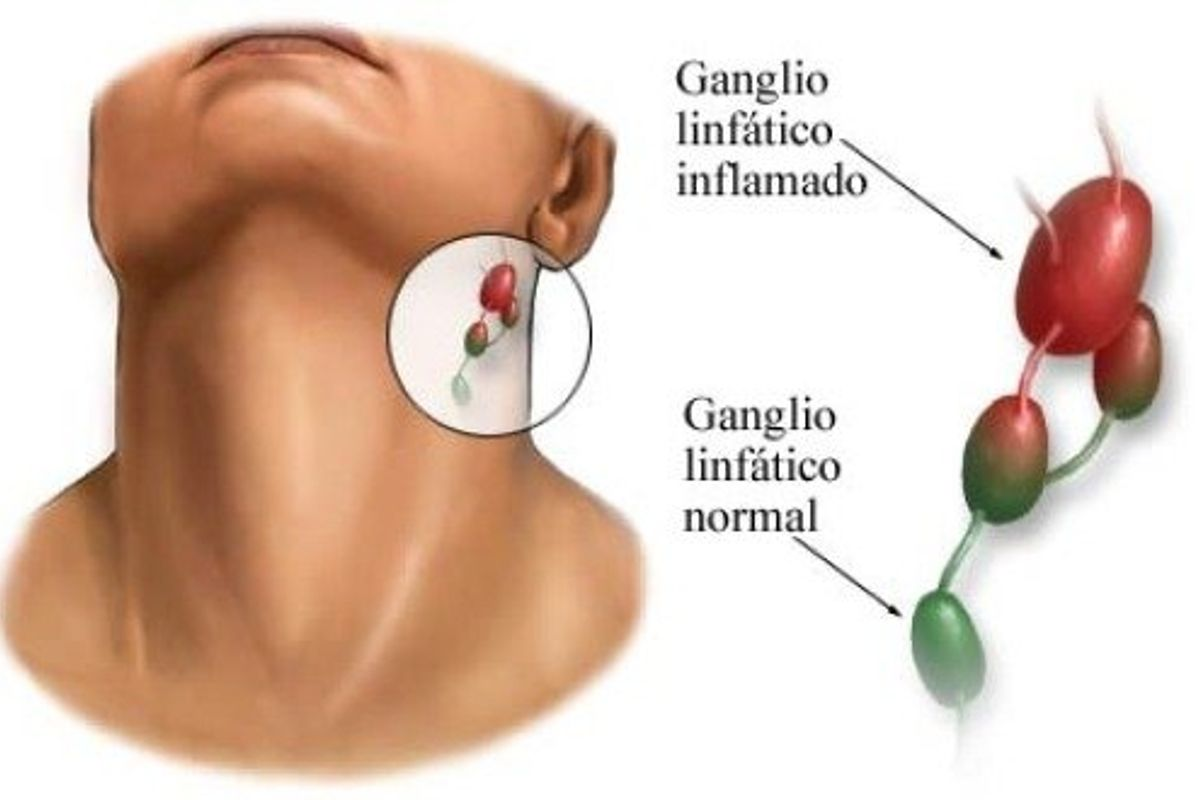 Qué causa la inflamación de los ganglios linfáticos?