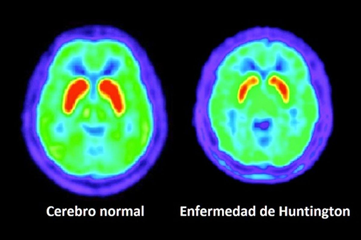 Único Uno Uñas Accidente Cerebrovascular Cresta - Ideas Para ...