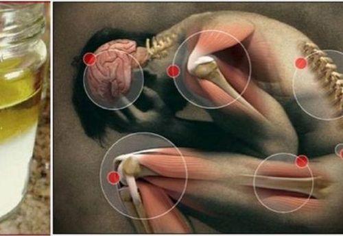 El dolor que duele del cuello y la nuca
