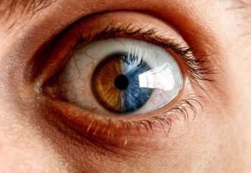 ebook Neuropsychological Interpretation of Objective Psychological Tests
