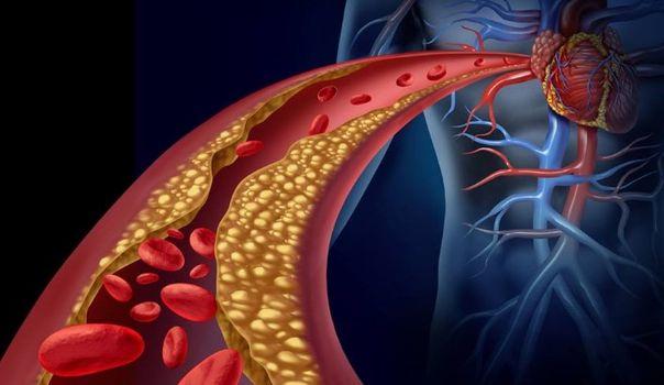 Cómo limpiar las arterias