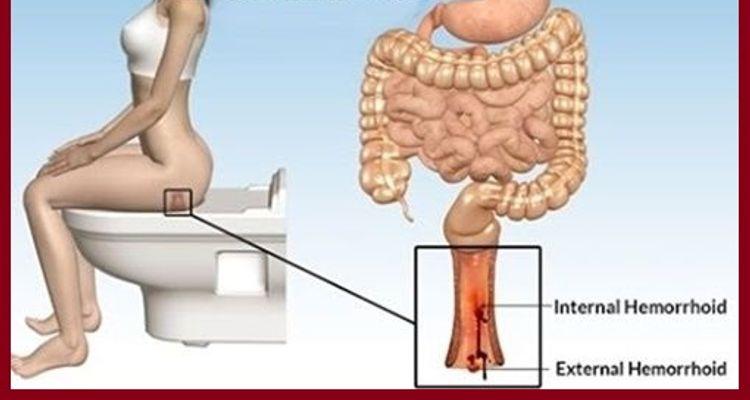 Las hemorroides son muy frecuentes y se tratan de las vénulas ...